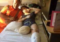 Drosmīgai meitenei tiek amputēta kāja, un tā bija viņas vēlēšanās – uzzini, kāpēc!