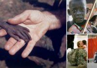 Šīs fotogrāfijas satricināja visu pasauli; Arī tu nespēsi palikt vienaldzīgs