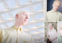 Ar albīnismu slimie cilvēki parāda sevi citā gaisma; Iespaidīgi stāsti un foto
