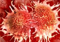 Paši neveselīgākie ēdieni, kuri, ar lielu iespējamību, var veicināt vēža rašanos; Vērts ieklausīties