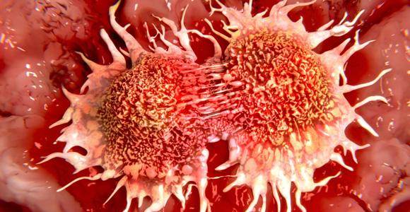 vēža ārstēšana