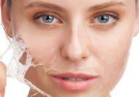 Veselīga sejas āda un lūpas: 5 padomi, kā ziemā saglabāt perfektu ādu