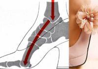 Kā augstpapēžu kurpes kaitē mūsu veselībai