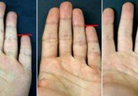 Lūk, ko par tevi var pastāstīt tavas rokas mazais pirkstiņš