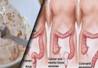 Kā attīrīt organismu no toksīniem; Šīs divas sastāvdaļas palīdzēs izvadīt kilogramiem toksīnu!