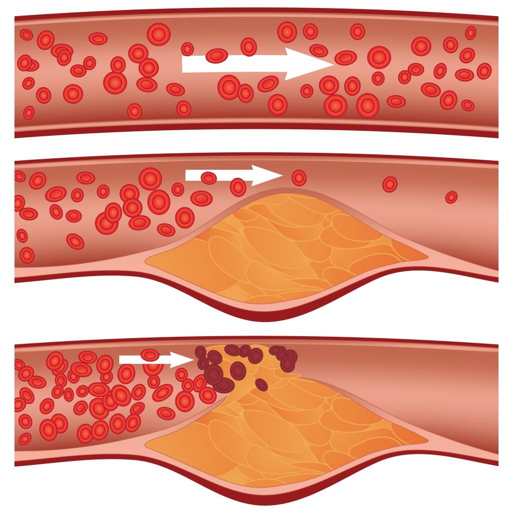 cholesterol-1024x1024