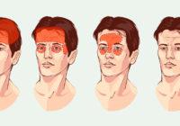 Galvassāpes pakausī vai citā galvas daļā? Par ko tas liecina un kā tikt galā