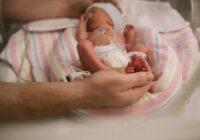 Čehijā piedzimuši bērni, kas nāk pasaulē uz miljons cilvēkiem vien retu reizi